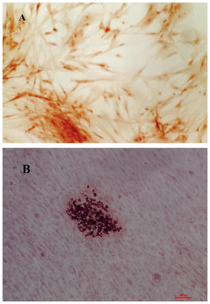 Characterization of the cell lines was made based on alkaline phosphatase activity, cells dyed in orange are positive for alkaline phosphatase activity (A) and mineralization in osteogenic medium, where it can be seen calcium nodes dyed in red color (B).