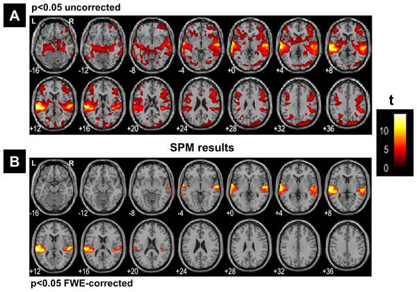 SPM's results.