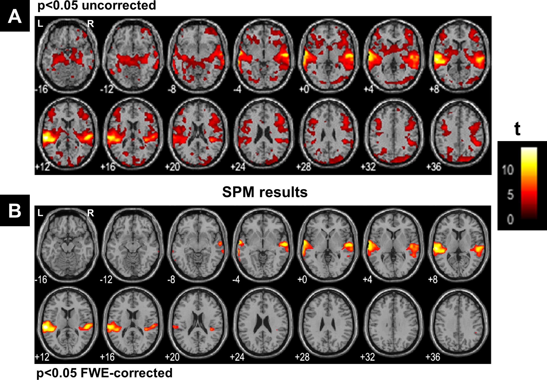 Clustering of fMRI data: the elusive optimal number of ...