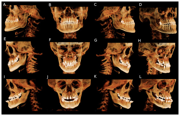 CBCT volume rendering of subjects affected by OI to different degrees of severity.