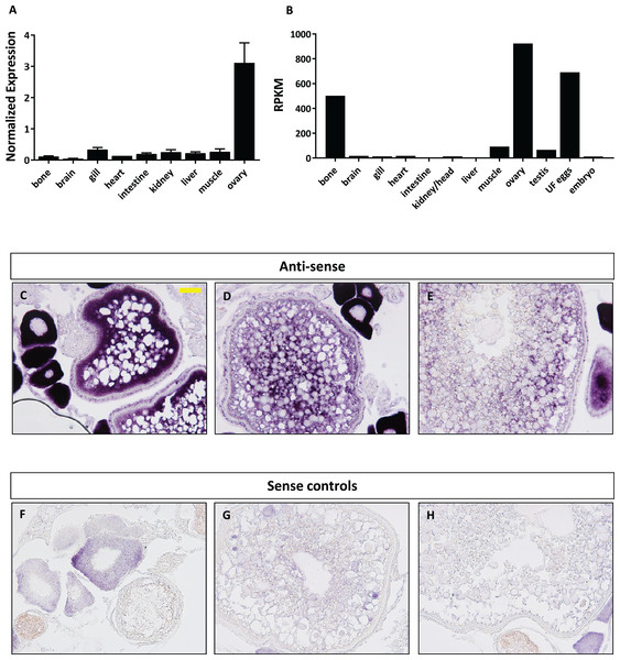 Expression profile of foxr1 in zebrafish.