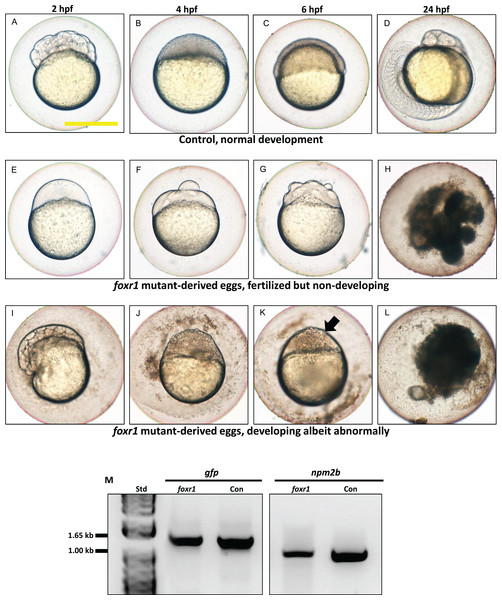 Effect of foxr1 deficiency on zebrafish embryogenesis.