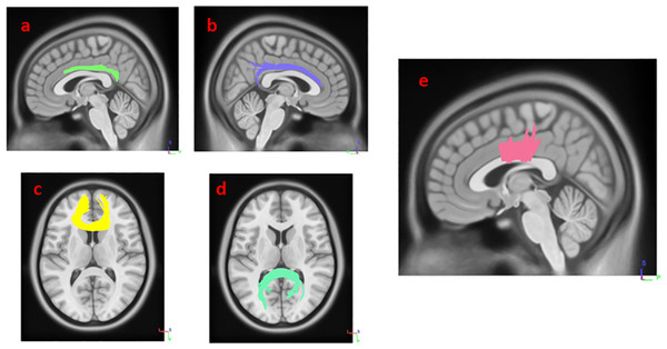 White matter pathways with significantly negative association with SCOPA-AUT in HY1PD patients (FDR = 0.0168067).