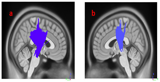 White matter pathways with significantly positive association with SCOPA-AUT in HY1PD patients (FDR = 0.0404073).