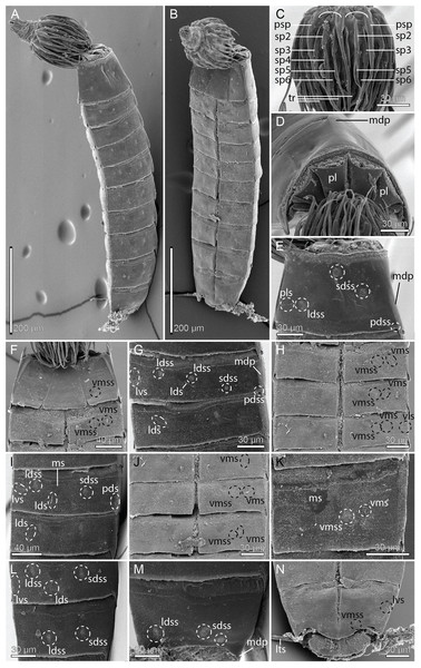 Scanning electron micrographs showing overviews and details of female Cristaphyes scatha sp. nov.