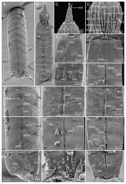 Scanning electron micrographs showing overviews and details of Pycnophyes ancalagon sp. nov.