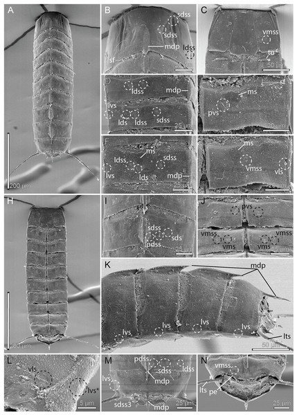 Scanning electron micrographs showing overviews and details of male Cristaphyes dordaidelosensis sp. nov.