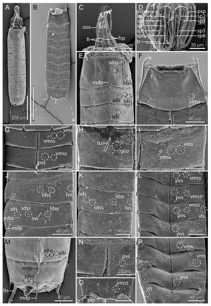 Scanning electron micrographs showing overviews and details of Cristaphyes glaurung sp. nov.