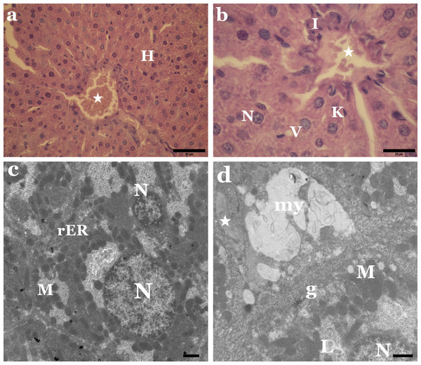 Sunset Yellow induces histological and ultrastructural alterations in liver tissue of rat.