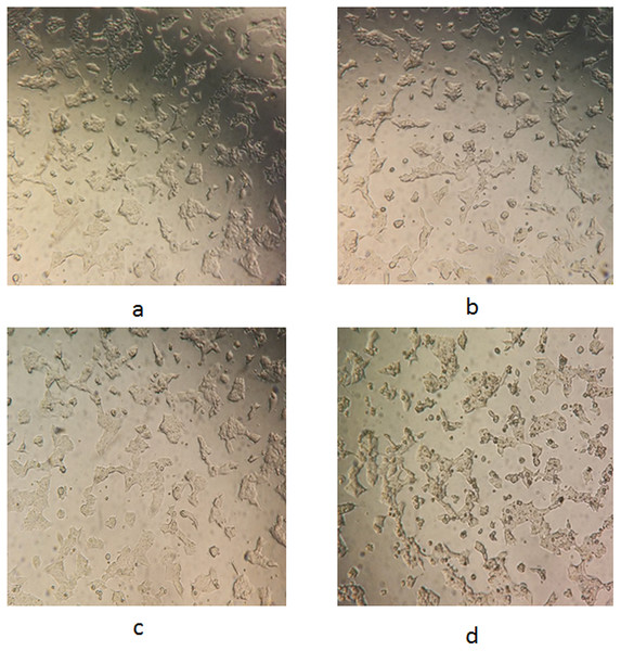 Representative images for morphological changes of WRL68 cells after 72 h of incubation without (A) and with treatment of FDS (B), FDM (C) and FDB (D) at the highest concentration (original magnification:10×).