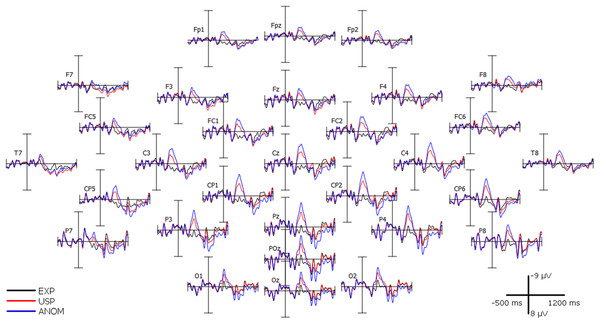 Grand average (n = 32) recorded over 30 scalp channels.