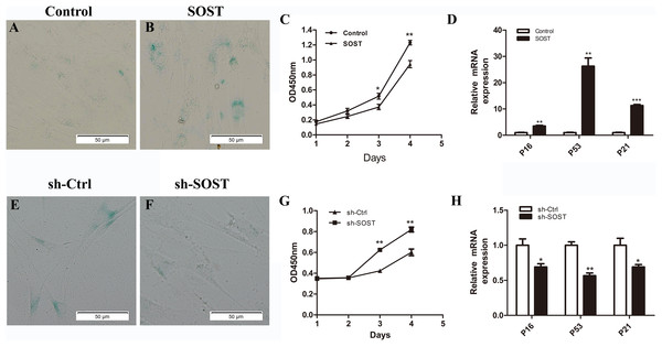 Effects of sclerostin overexpression and knockdown on senescence and proliferation of HDPCs.