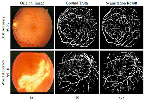 STARE dataset segmentation result: (A) original image, (B) ground truth and (C) segmented vessels.