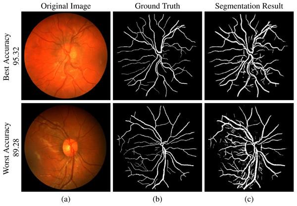CHASE-DB1 dataset segmentation result: (A) original image, (B) ground truth and (C) segmented vessels.