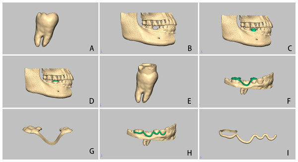 Computer-aided autotransplantation of tooth and virtual design of a series of novel surgical guides.