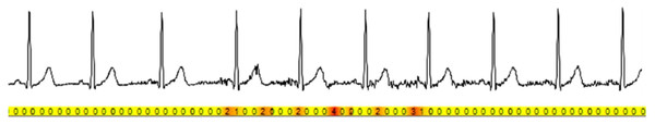 Data acquired from VitalJacket® wearable medical device captured during non-movement and movement. This figure shows an example of the medical grade ECG waveform acquired and below an activity intensity from the accelerometer acquired data.