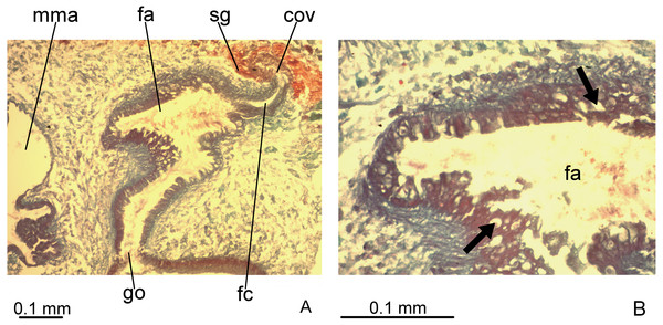 Difroehlichia elenae sp. nov., holotype, copulatory apparatus in sagittal sections.