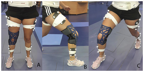 Showing the lunge to the net movement with multisegment foot and marker set when wearing the knee brace.