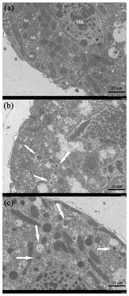 Ultrastructural analysis by TEM of T. thermophila cells exposed to increasing concentrations of gelsemine for 24 h.