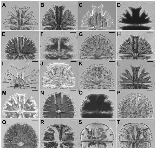 Semicells of 19 Micrasterias taxa.