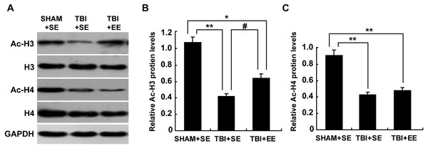 EE improves Ac-H3 protein expression in the prefrontal cortex of contralateral side of TBI.
