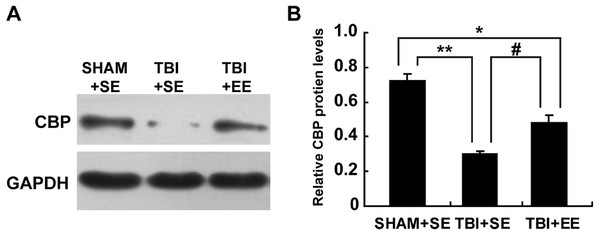 EE enhances CBP protein expression in the prefrontal cortex of contralateral side of TBI.