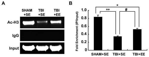 EE increases histone H3 acetylation at ChAT gene M-type promoter region in the prefrontal cortex of contralateral side of TBI.