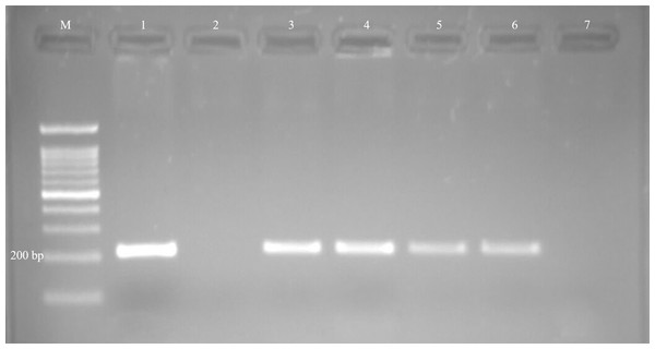 Examples of agarose gel electrophoresis of Neospora caninum obtained by nested-PCR.