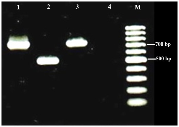 Examples of agarose gel electrophoresis of Brucella species PCR products using multiplex PCR.