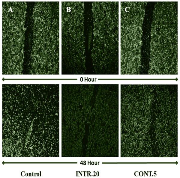 HUVECs cell migration assessment using wound-healing assay.
