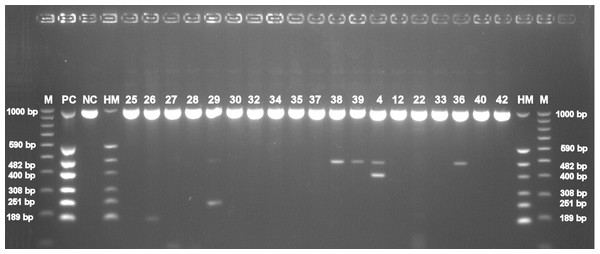 Electrophoretical detection of amplification of herpesviral PCR products from combined right and left trigeminal nerve ganglia on agarose gel.
