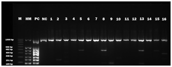 Electrophoretical detection of amplification of herpesviral PCR products from combined right and left facial nerve ganglia on agarose gel.