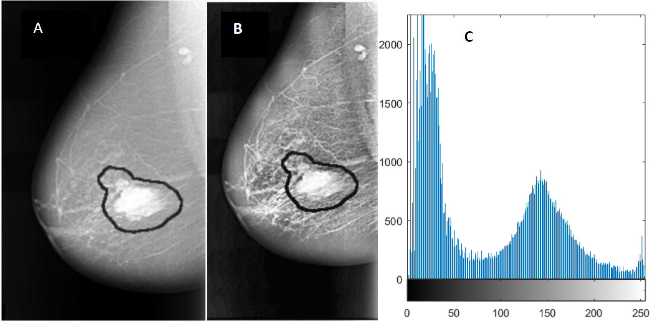 Breast cancer detection using deep convolutional neural