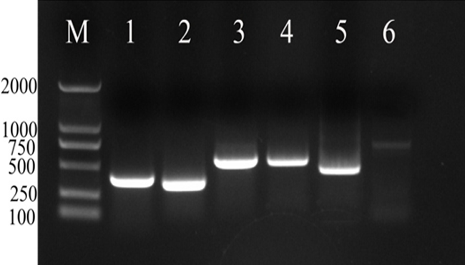 Screening Of Reference Genes In Real Time Pcr For