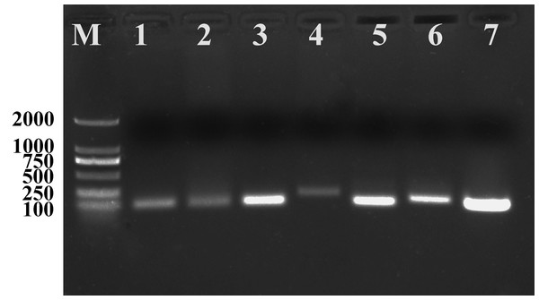PCR products of seven candidate reference genes of Radopholus similis amplified by qPCR primers.