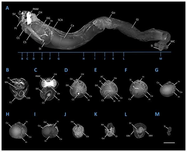 Microcomputed Tomography 3D render of Tamilokus mabinia.
