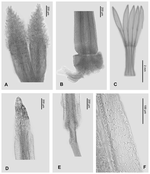 Micro-morphology of Aster tonglingensis.