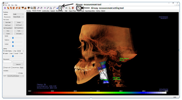 Display of Invivo5 software for airway analysis in 'volume render' menu.