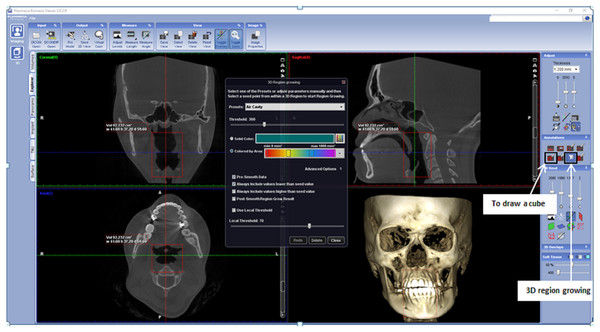 Display of Romexis (version 3.8.2.R) software for airway analysis using region growing tools.