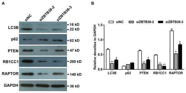 Knockdown of ZBTB38 triggers inhibition of autophagy in SH-SY5Y cells.