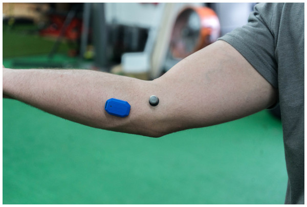 Placement of the motusBASEBALL sensor on the elbow.