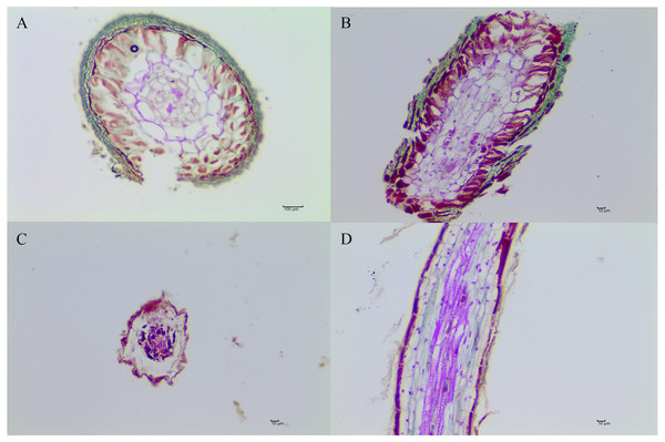 The morphological characteristics of T. indicum ectomycorrhizae (A, B) and control roots tips that were not colonized by T. indicum (C, D).