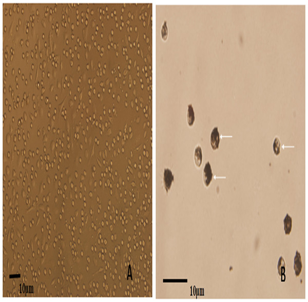 The microscopic examination for the recovery and phagocytic activity of PAM.