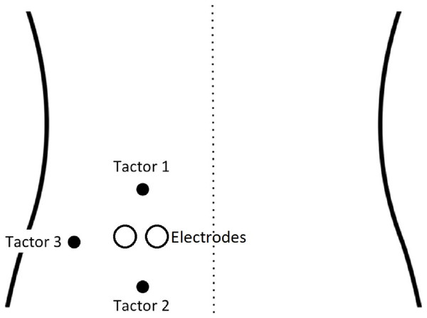 Set-up of vibrotactors and the electrodes on the back (adapted with permission from Madden et al. (2016a)).