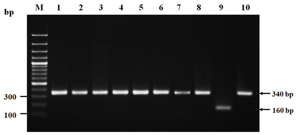 Nonribosomal peptide synthetase (NRPS) gene amplicons of isolated Staphylococcus argenteus.