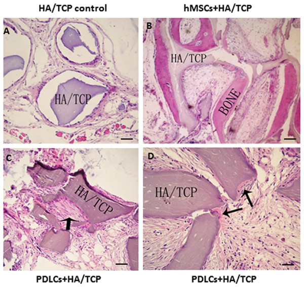 Transplantation of osteo-inductive PDLCs and hMSCs with HA/TCP scaffolds to SCID mice.