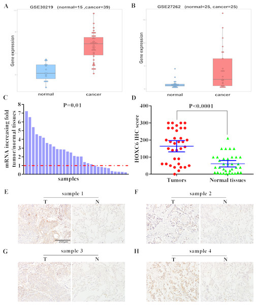 Elevated expression of HOXC6 in NSCLC in comparison to adjacent normal tissues.