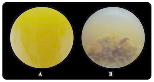 Image of Rhodobacter sp. KKU-PS1 in the fermentation broth (A) the live cells in 15 mM butyrate as a carbon source (B) cell death resulted sedimentation in the fermentation broth containing a high butyrate concentration (30–75 mM).