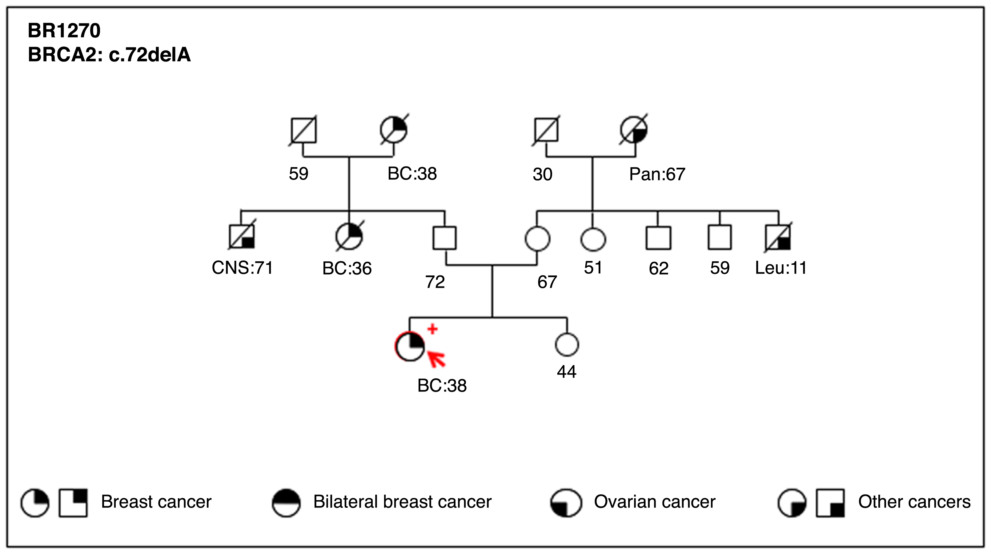 Next-generation sequencing of BRCA1 and BRCA2 genes for