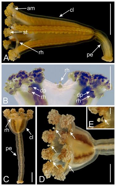 Dark pigment spots associated with rhopalioids in species of Manania.